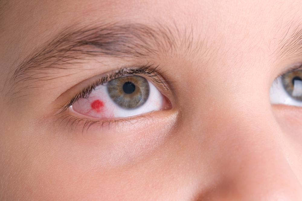 تفسير احمرار العين في المنام