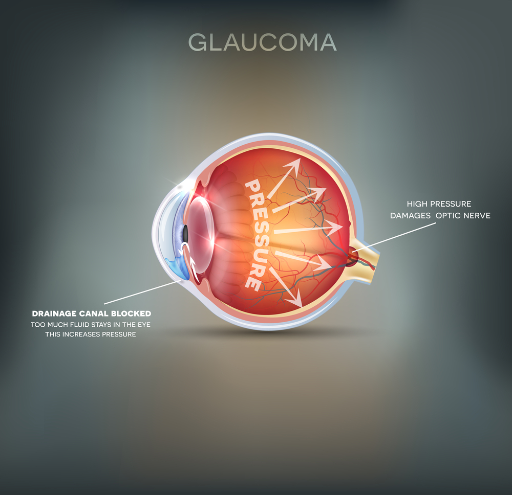 Common Symptoms of Glaucoma | Ophthalmologist in San Antonio & Floresville